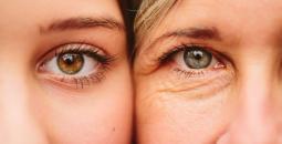 علاج تجاعيد العينين.jpg