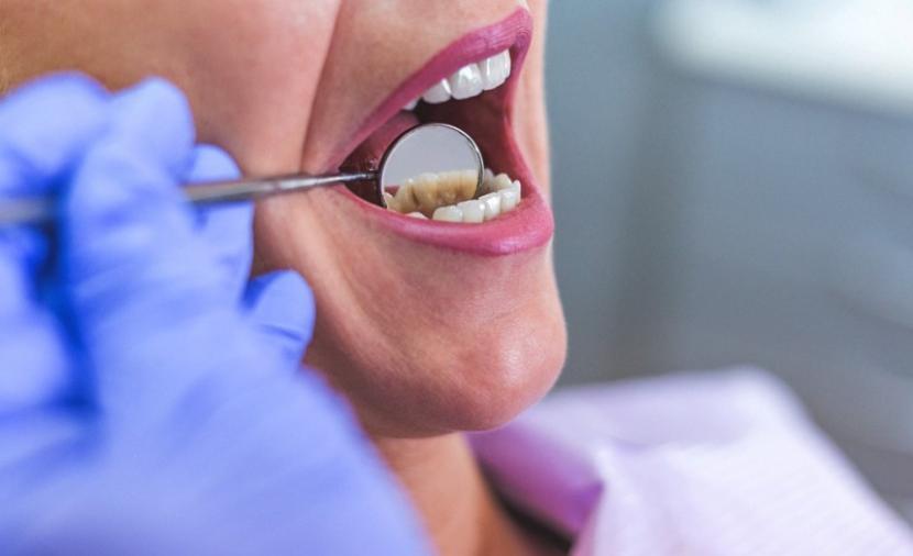 أعراض خراج الأسنان وكالة سند للأنباء